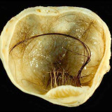 dermoid-cyst-of-the-ovary1