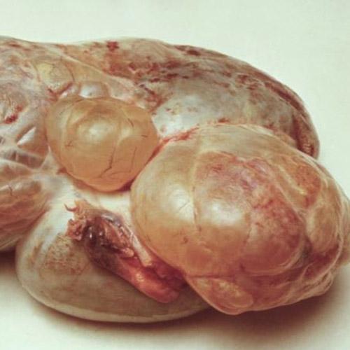 Серозная цистаденома яичника - Все о кистах