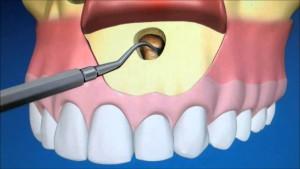 что такое резекция корня зуба и для чего нужна