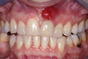 для удаления кисты зуба используется операция резекция корня зуба
