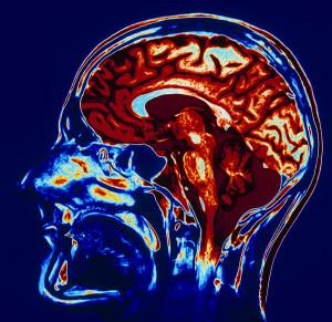 профилактика кисты головного мозга