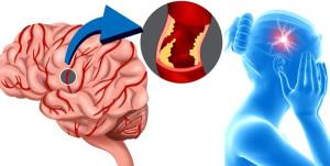 ретроцеребеллярная киста мозга - причины и последствия кисты головного мозга