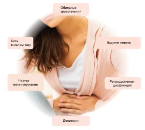 симптомы и признаки миомы матки