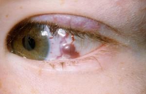 гемангиома - виды кисты глаза