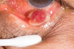 гранулема - виды кисты глаза