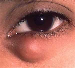 онкоцитома- виды кисты глаза