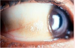 кератома и пятна Бито - виды кисты глаза
