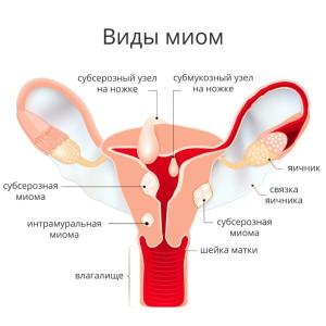 виды и симптомы миомы матки