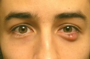 липосаркома - виды кисты глаза