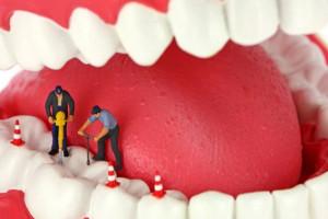способы лечение кисты зуба без удаления зуба