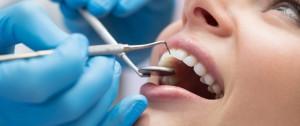способы лечения кисты зуба