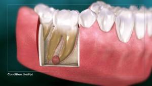 симптомы кисты зуба. Как проходит диагностика?