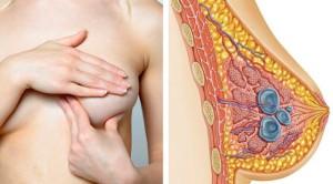 Из-за чего возникает киста молочной железы?