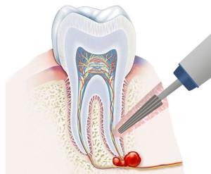апиктомия (уистотомия) как способ лечения кисты зуба без удаления
