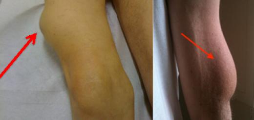 Липогипертрофия: шишки после уколов - инсулиновые шишки