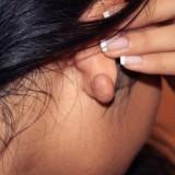 Киста на мочке уха - причины появления.